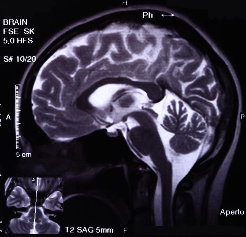 Cavernous angioma is often diagnosed through brain imaging scans.