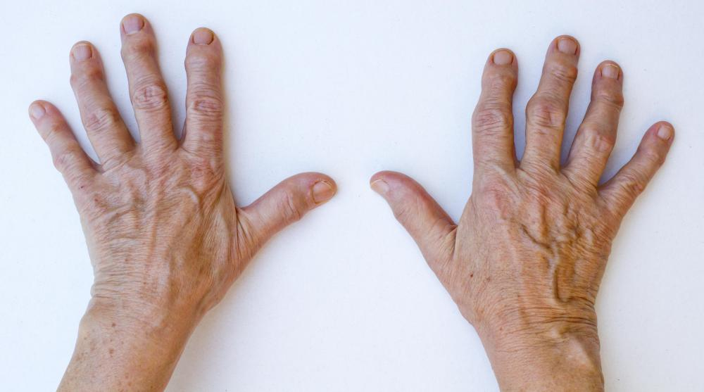 The finger joints are often affected by infectious arthritis.