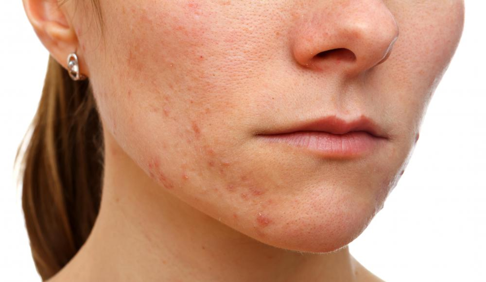 People with acne look for products that are noncomedogenic.