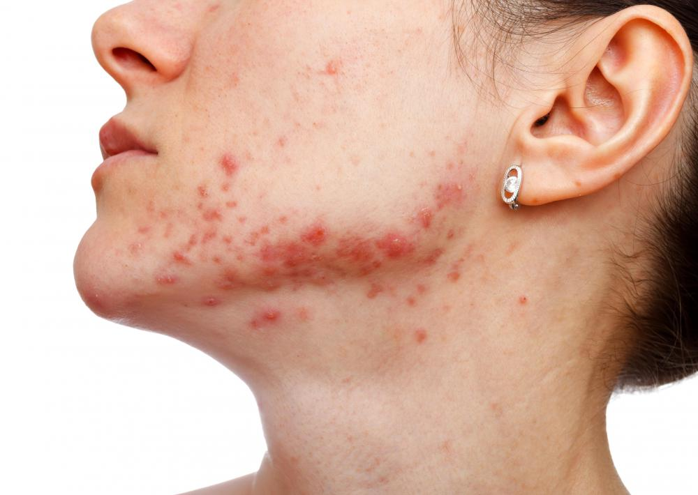 Some forms of acne might respond to aloe vera treatment.