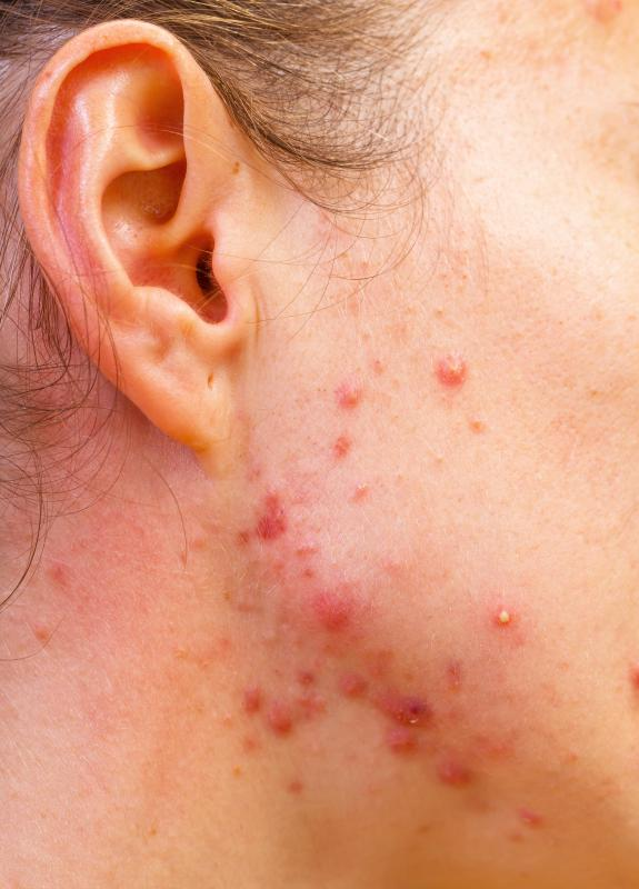 Mout blisters may be caused by acne.