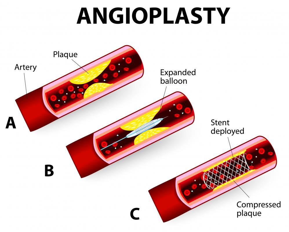 During an angioplasty, a stent may inserted into an artery, and it is typically inflated with a balloon catheter.
