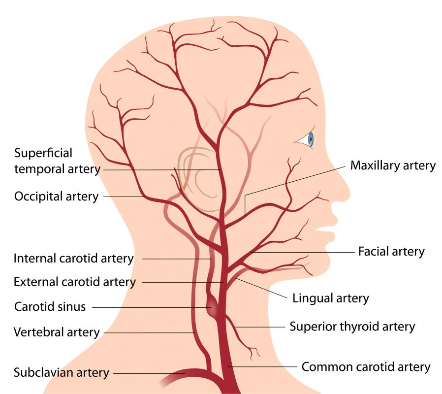 A diagram of the human head and neck, including the arteries in red.