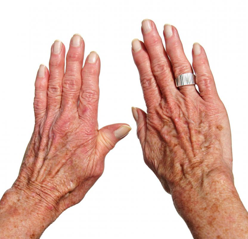 Age spot removers are generally available as creams.
