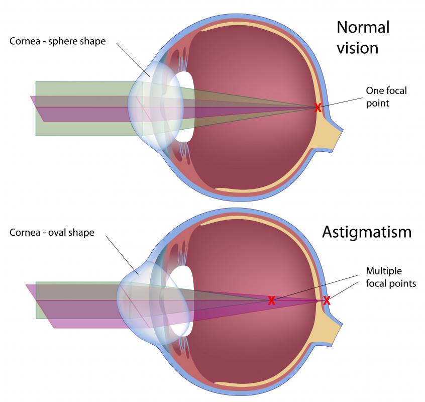 In astigmatism, the eye focuses images on more than one point rather than the single point of normal vision.