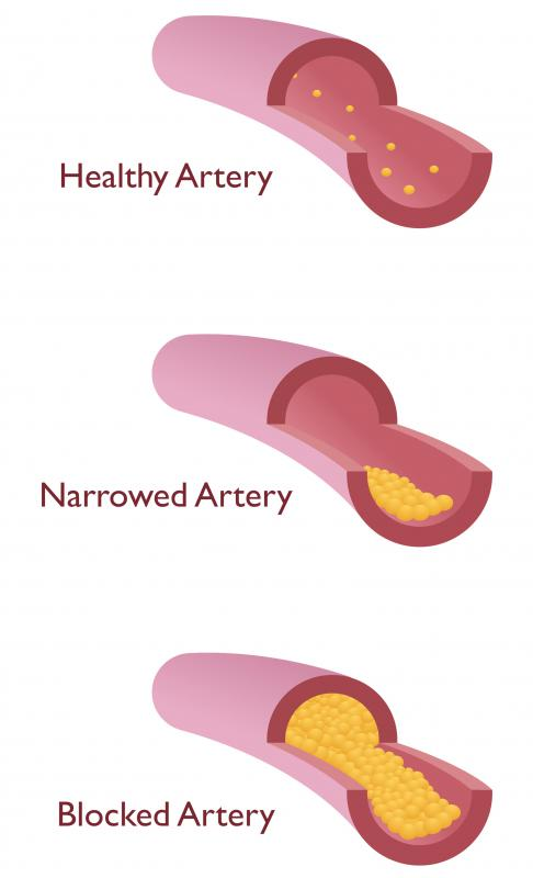 If the artery to the legs becomes blocked, the legs won't receive proper amounts of nutrients and oxygen.
