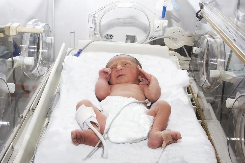 A baby born before 37 weeks is considered premature.