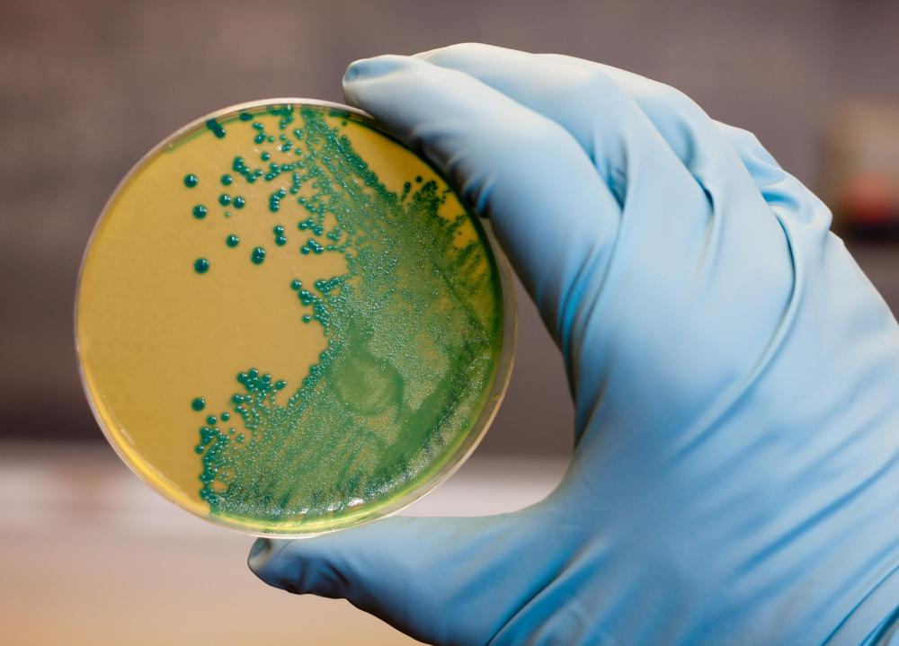 A microbiologist may use Petri dishes to study bacteria.