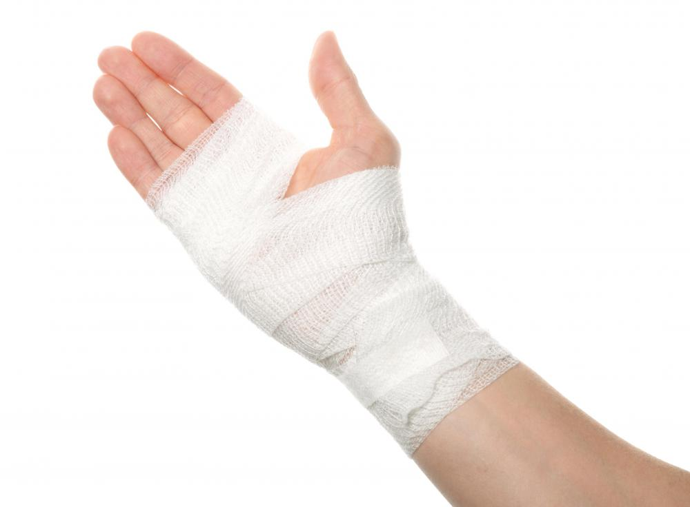 Sterile gauze is applied and wrapped to an open burn or laceration to prevent infection.