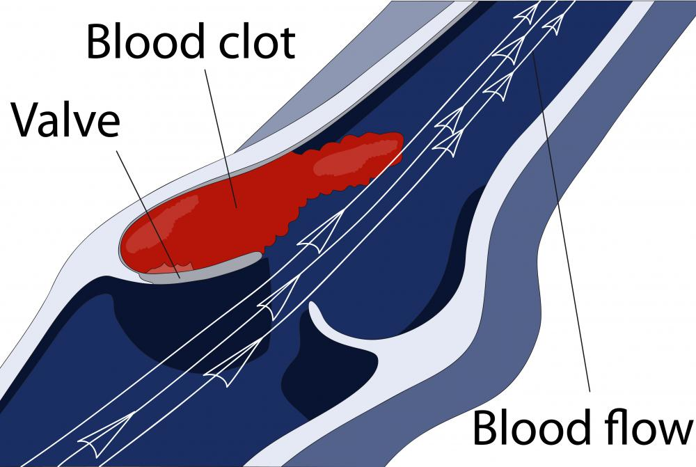 Under normal circumstances, a woman can expect to have some vaginal blood clots.