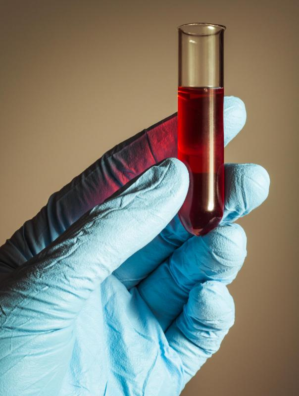 Doctors will perform many tests using blood samples to gather the information they need.