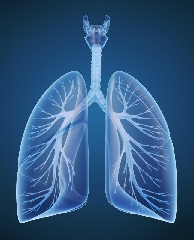 In lung decortication, the surgeon removes fibrous and scarred areas of the pleural membranes of the lungs.