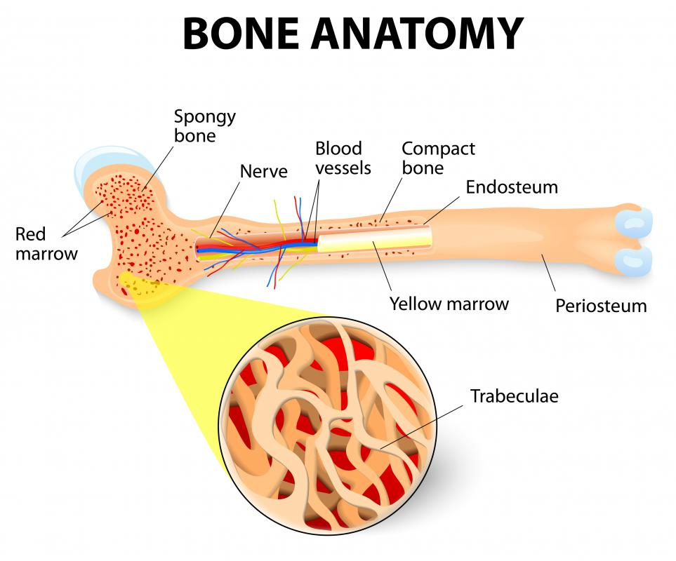 Ossification refers to the natural formation of bone.