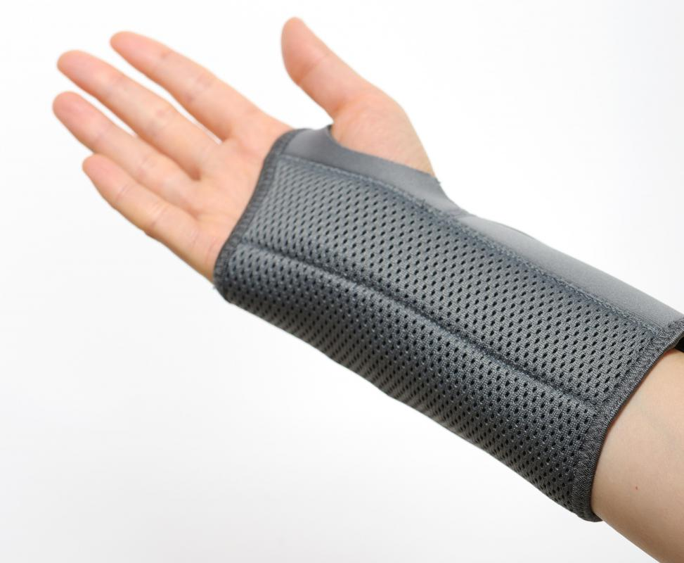 Median nerve damage resulting from carpal tunnel often goes away in about six months.