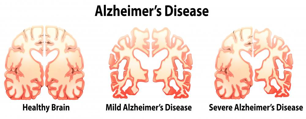Niacinamide may help to delay the onset of Alzheimer's disease.