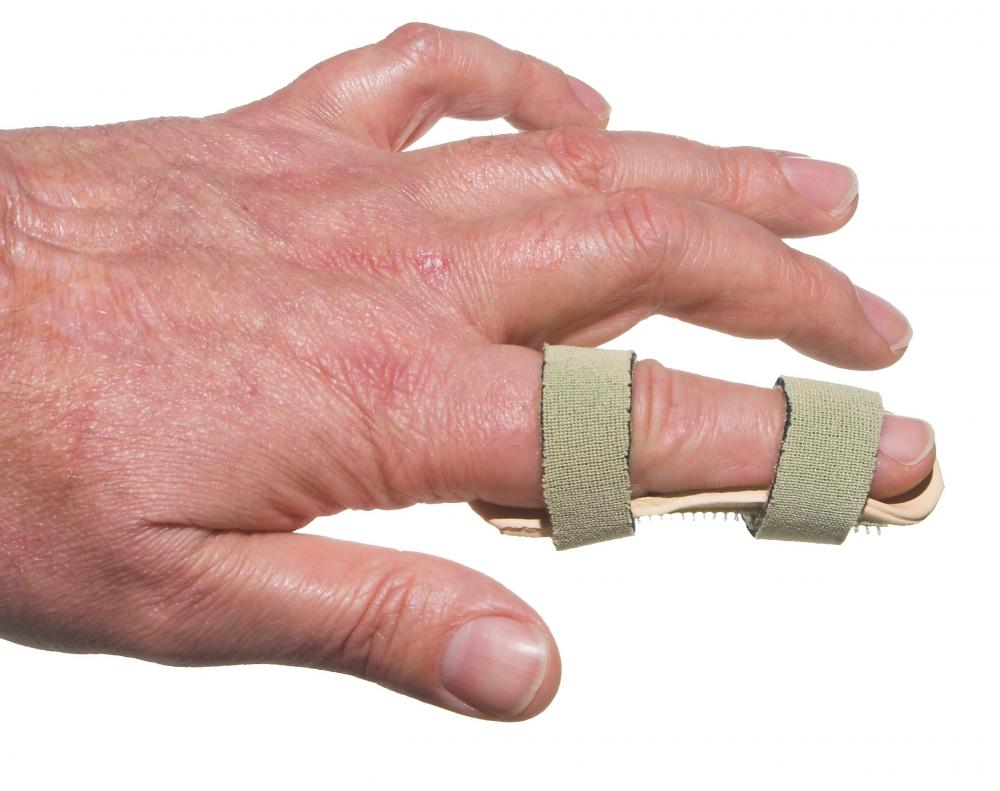 Trigger finger, a repetitive strain injury, is sometimes treated with a splint.