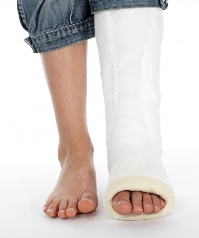An orthopedist may diagnose and care for patients with broken bones.