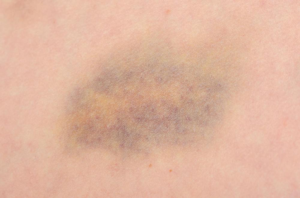 Injuries or trauma are common causes of a breast bruise.