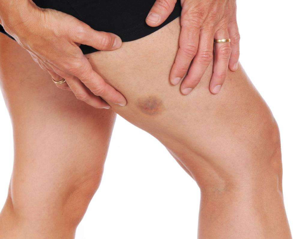 A bruise can cause skin discoloration.