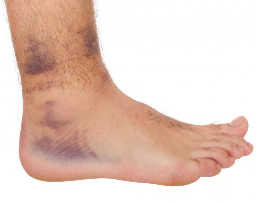 A hairline fracture of the ankle may cause bruising.