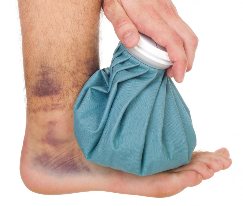 Applying ice can help reduce ankle swelling.