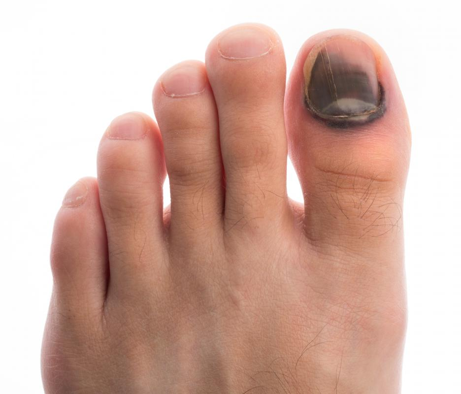 A toenail may be discolored due to blood getting trapped under the nail after an injury.
