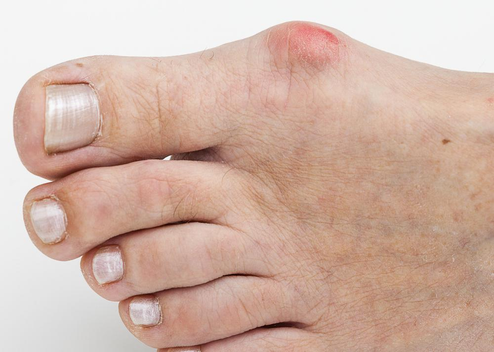 Yoga toes manufacturers claims the devices can treat bunions.