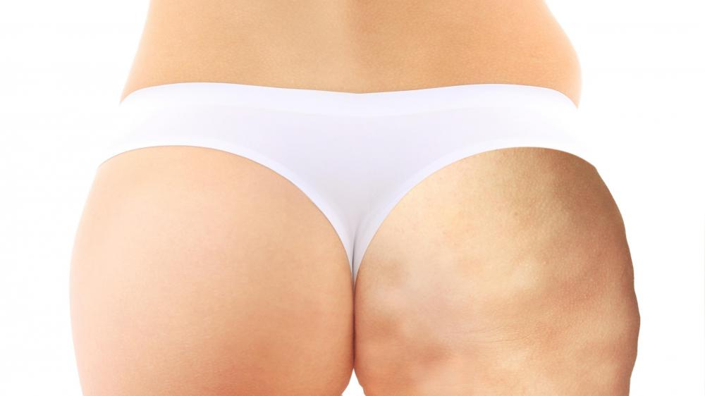 If treatment is not regularly sought, endermologie does not permanently reduce the dimpling effect of cellulite.