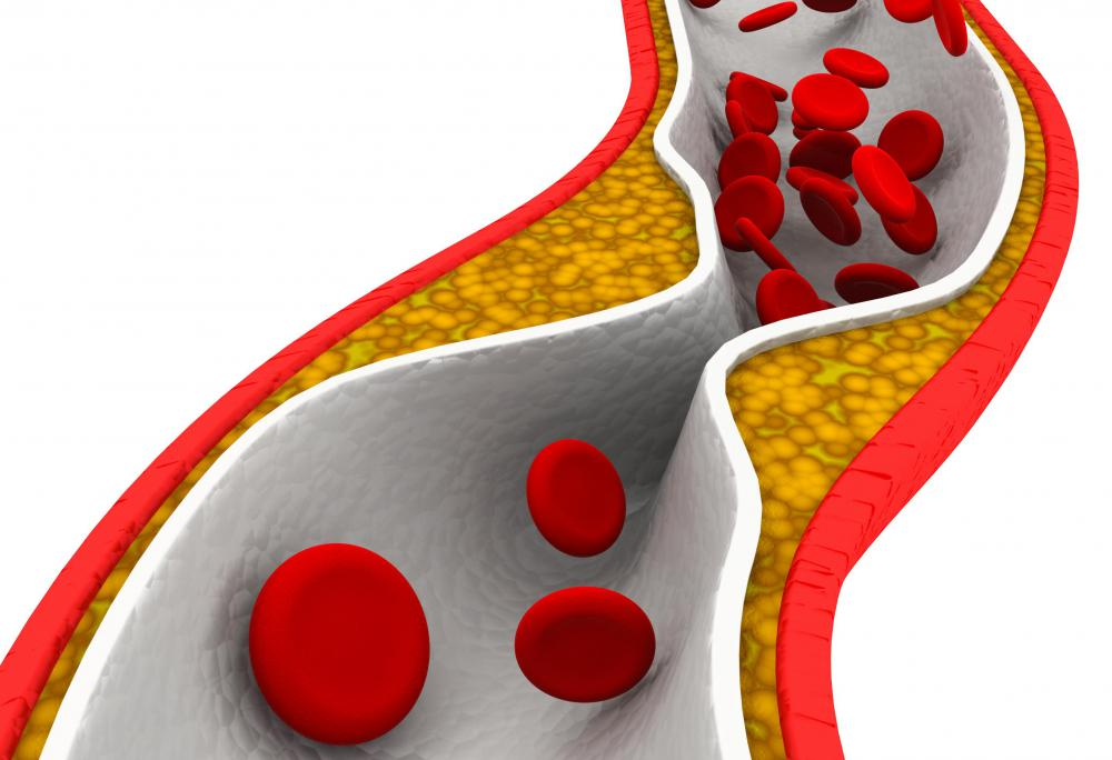 Cholesterol helps stabilize phospholipid bilayer, but too much cholesterol can be dangerous for arteries involved in blood flow.