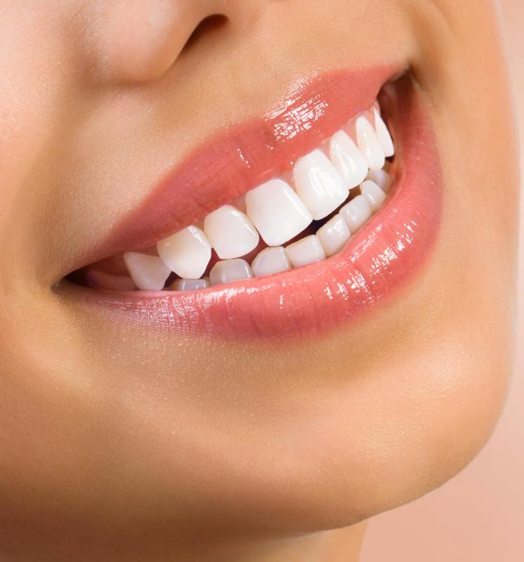 UV teeth whitening kits may cause mouth and gum irritation because of the strong bleach used.