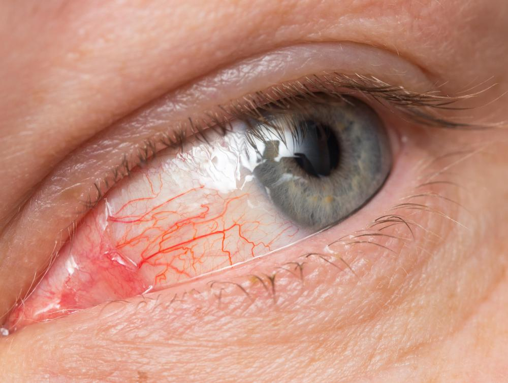Symptoms of an angle-closure glaucoma attack may include red eyes.