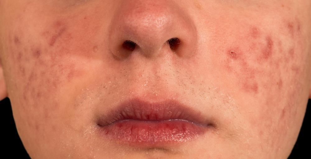 Acne may lead to green pus buildup.