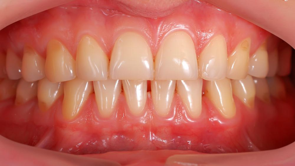 The gingival sulcus helps to prevent bacteria from entering the body through the gums.