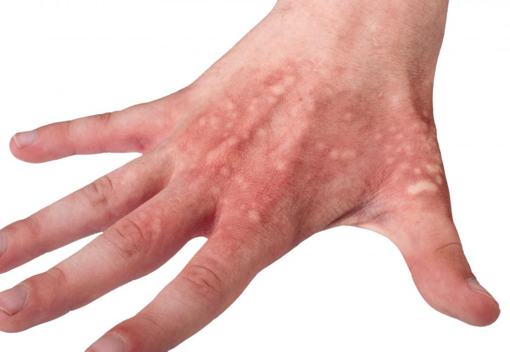 Although unusual, urine can be used to treat or prevent blisters on hands.
