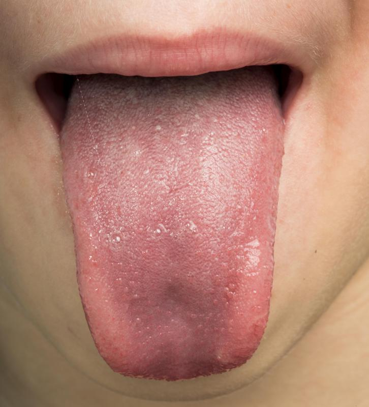 Warning signs of an allergic reaction to a spider bite may include a swollen tongue.