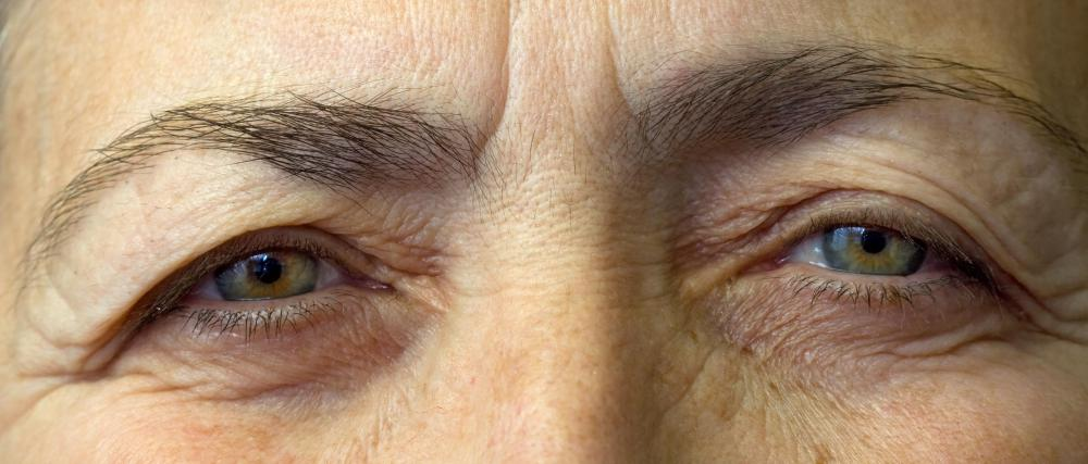 An individual who has dry skin should use a moisturizing anti-aging eye cream.