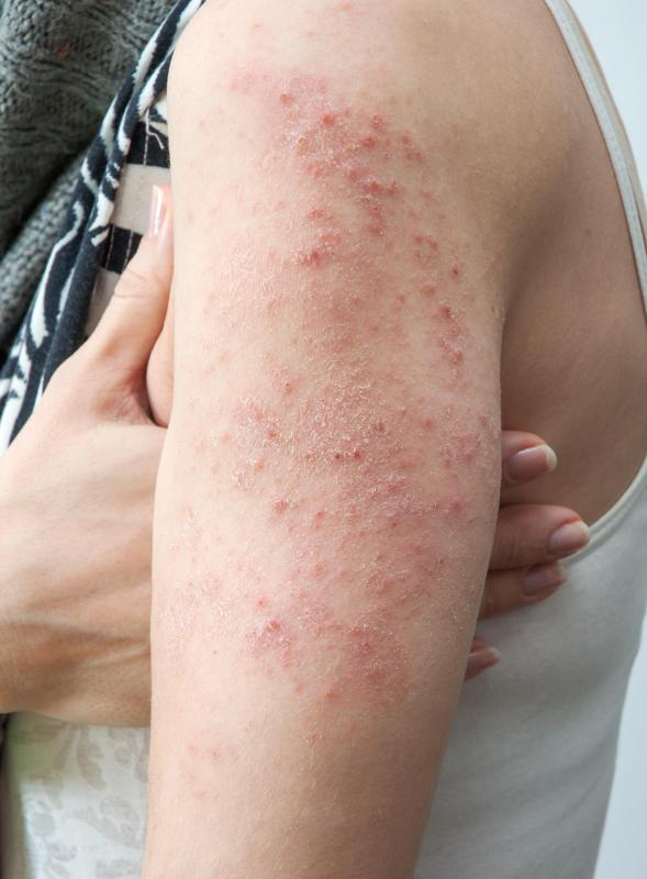 A bacterial infection may cause a vasculitis rash to develop.