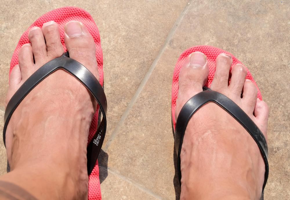 Wearing a breathable shoe, like a sandal, can help treat a foot fungal infection.