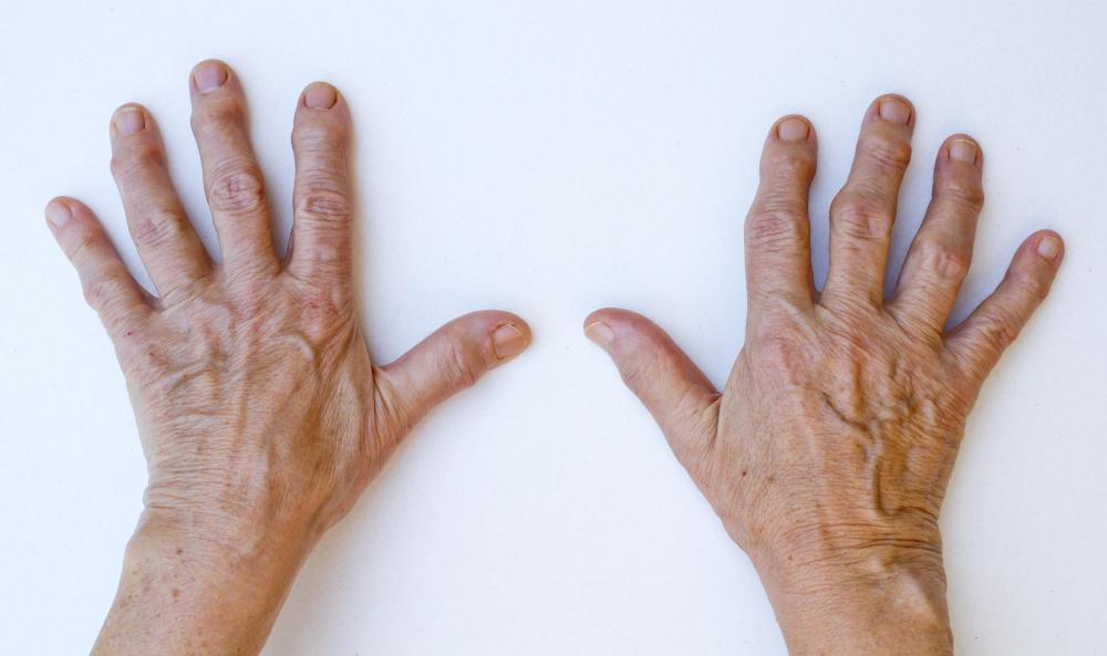The MCP joints are less vulnerable to injury than the interphalangeal joints in the fingers.