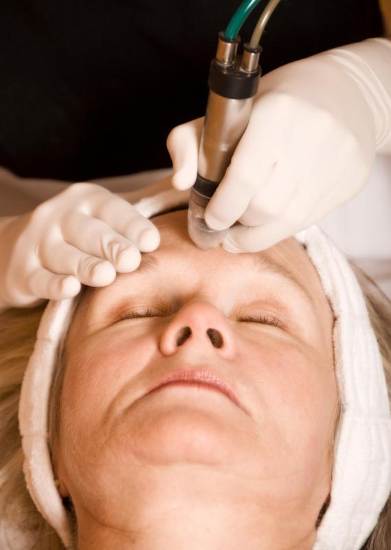 Electrolysis for eyebrows is a permanent procedure performed to shape an individual's eyebrows.