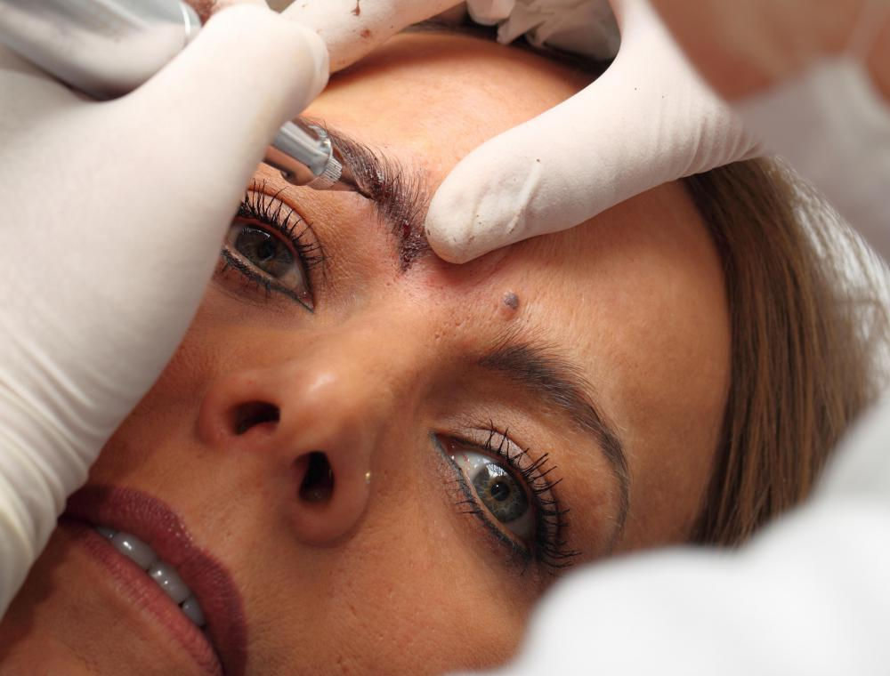 An artist creates small ink lines along the brow line during a semi-permanent eyebrow process.