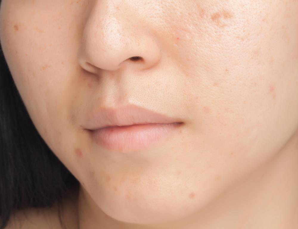 Niacinamide may be applied as a gel to treat acne.