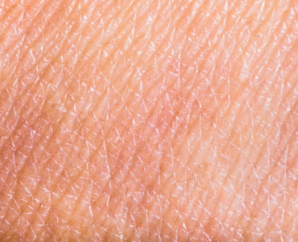 Keratinized epithelium is found in human skin.