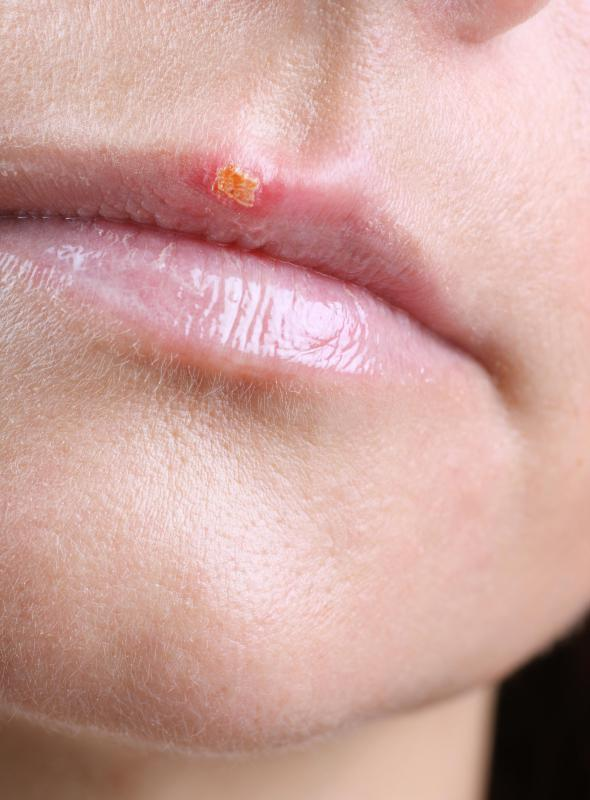 Cold sore on lip.