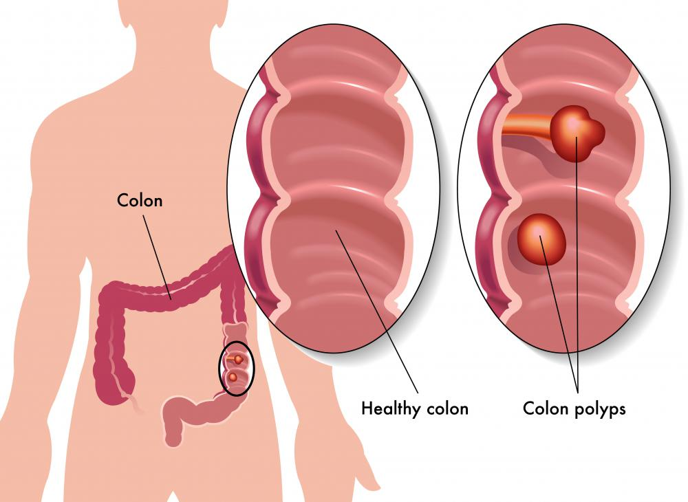 One of the most common causes of cancer death in the US is colon cancer.