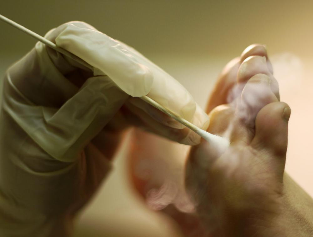 Wart skin blister, GIANT WART FREEZING (with liquid nitrogen) - Dr. Paul vph ano mujeres sintomas