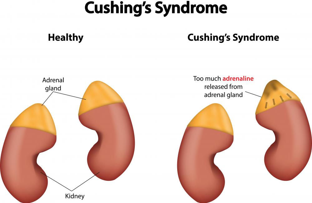Overactive adrenal glands, called Cushing's Syndrome, causes high blood pressure.