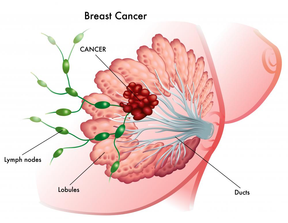 A PET scan for breast cancer may be used after diagnosis to collect more information about the cancer.