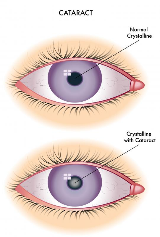 Cataracts occur when part of the eye is damaged and the eyes' lenses become cloudy.