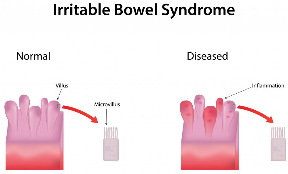 People who suffer from irritable bowel syndrome may suffer from painful constipation.